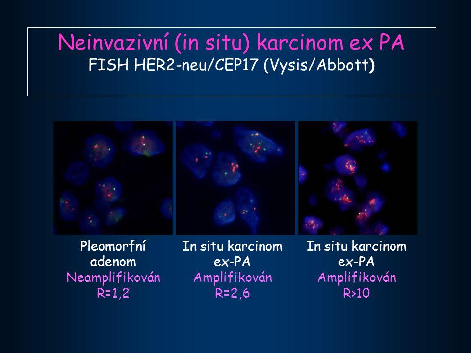 Neinvazivní (in situ) karcinom ex PA FISH HER2-neu/CEP17 (Vysis/Abbott) Pleomorfní adenom Neamplifikován R=1,2 In situ karcinom ex-PA Amplifikován R=2,6 In situ karcinom ex-PA Amplifikován R>10