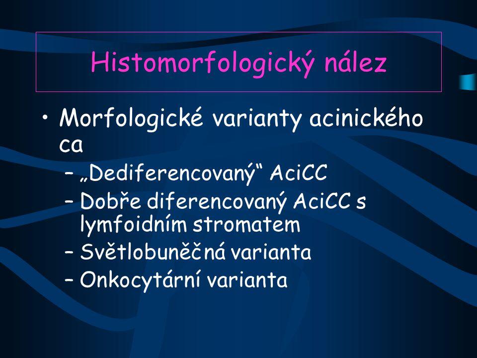 """Histomorfologický nález Morfologické varianty acinického ca –""""Dediferencovaný AciCC –Dobře diferencovaný AciCC s lymfoidním stromatem –Světlobuněčná varianta –Onkocytární varianta"""