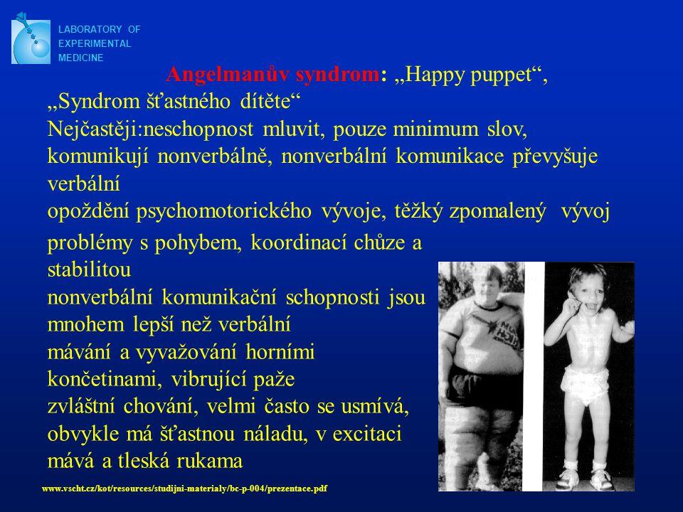 """LABORATORY OF EXPERIMENTAL MEDICINE problémy s pohybem, koordinací chůze a stabilitou nonverbální komunikační schopnosti jsou mnohem lepší než verbální mávání a vyvažování horními končetinami, vibrující paže zvláštní chování, velmi často se usmívá, obvykle má šťastnou náladu, v excitaci mává a tleská rukama Angelmanův syndrom: """"Happy puppet , """"Syndrom šťastného dítěte Nejčastěji:neschopnost mluvit, pouze minimum slov, komunikují nonverbálně, nonverbální komunikace převyšuje verbální opoždění psychomotorického vývoje, těžký zpomalený vývoj www.vscht.cz/kot/resources/studijni-materialy/bc-p-004/prezentace.pdf"""