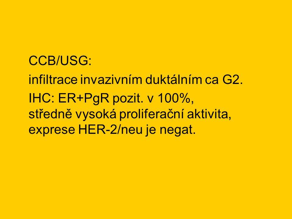 CCB/USG: infiltrace invazivním duktálním ca G2. IHC: ER+PgR pozit. v 100%, středně vysoká proliferační aktivita, exprese HER-2/neu je negat.