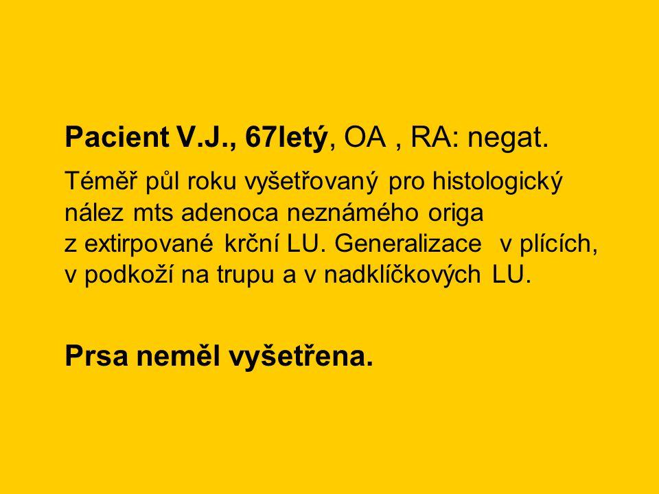 Pacient V.J., 67letý, OA, RA: negat. Téměř půl roku vyšetřovaný pro histologický nález mts adenoca neznámého origa z extirpované krční LU. Generalizac