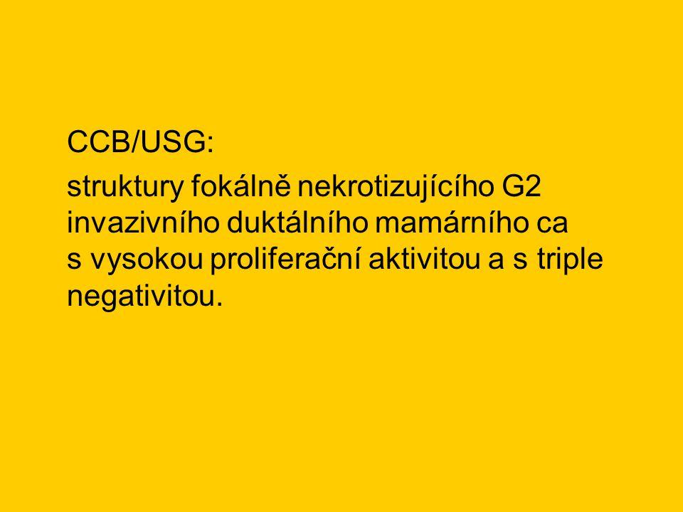 CCB/USG: struktury fokálně nekrotizujícího G2 invazivního duktálního mamárního ca s vysokou proliferační aktivitou a s triple negativitou.