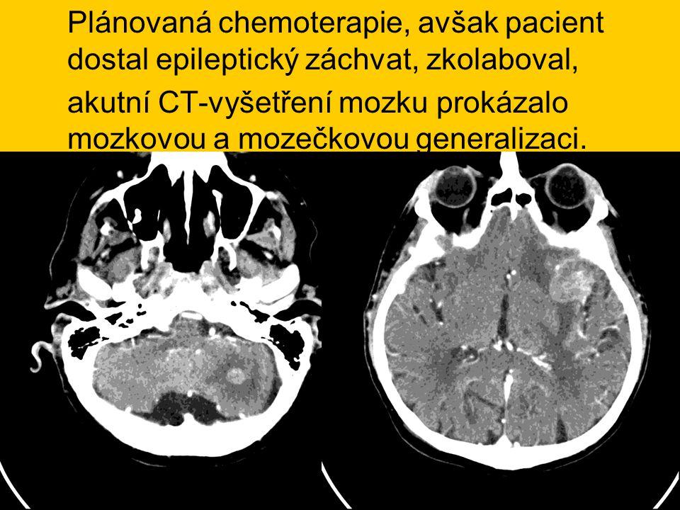 Plánovaná chemoterapie, avšak pacient dostal epileptický záchvat, zkolaboval, akutní CT-vyšetření mozku prokázalo mozkovou a mozečkovou generalizaci.