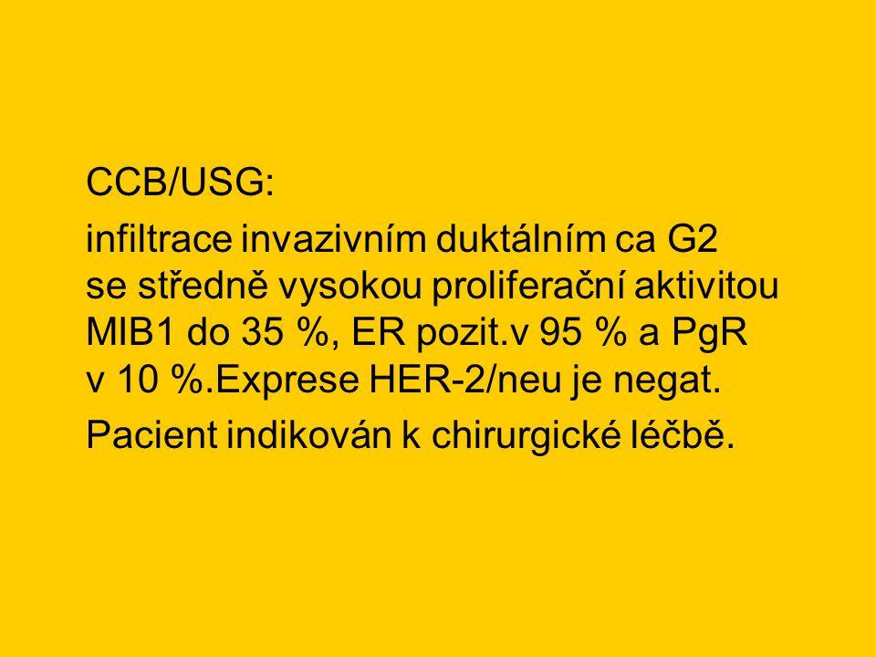 CCB/USG: infiltrace invazivním duktálním ca G2 se středně vysokou proliferační aktivitou MIB1 do 35 %, ER pozit.v 95 % a PgR v 10 %.Exprese HER-2/neu