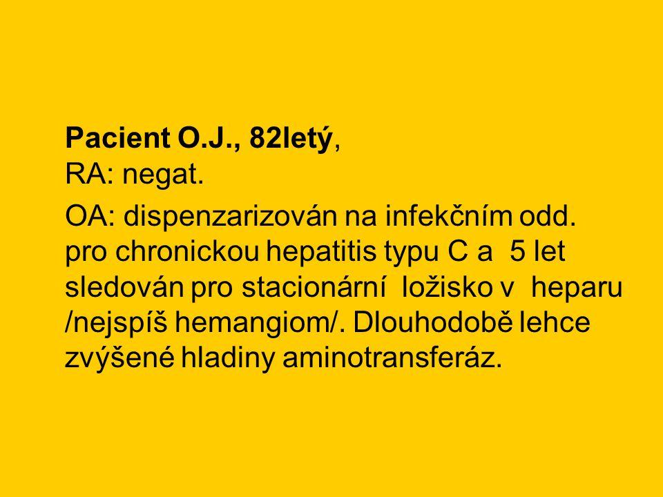 Pacient O.J., 82letý, RA: negat. OA: dispenzarizován na infekčním odd. pro chronickou hepatitis typu C a 5 let sledován pro stacionární ložisko v hepa