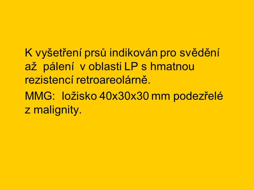 K vyšetření prsů indikován pro svědění až pálení v oblasti LP s hmatnou rezistencí retroareolárně. MMG: ložisko 40x30x30 mm podezřelé z malignity.