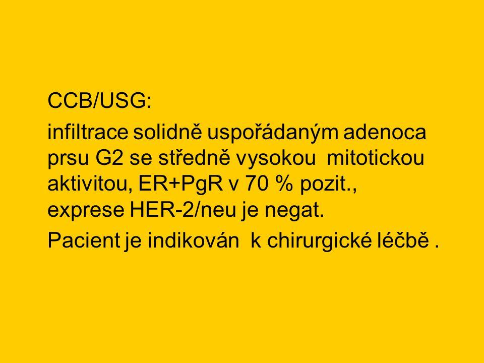 CCB/USG: infiltrace solidně uspořádaným adenoca prsu G2 se středně vysokou mitotickou aktivitou, ER+PgR v 70 % pozit., exprese HER-2/neu je negat. Pac
