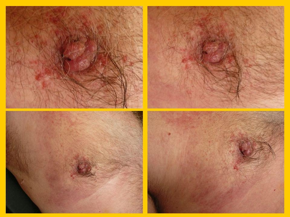 MMG: zhrublý kožní kryt, retrakce areolomamilárního komplexu, retromamilárně nepravidelný spikulovitý jádrový stín 25x18mm, bez MK.
