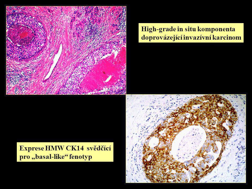 """High-grade in situ komponenta doprovázející invazívní karcinom Exprese HMW CK14 svědčící pro """"basal-like fenotyp"""