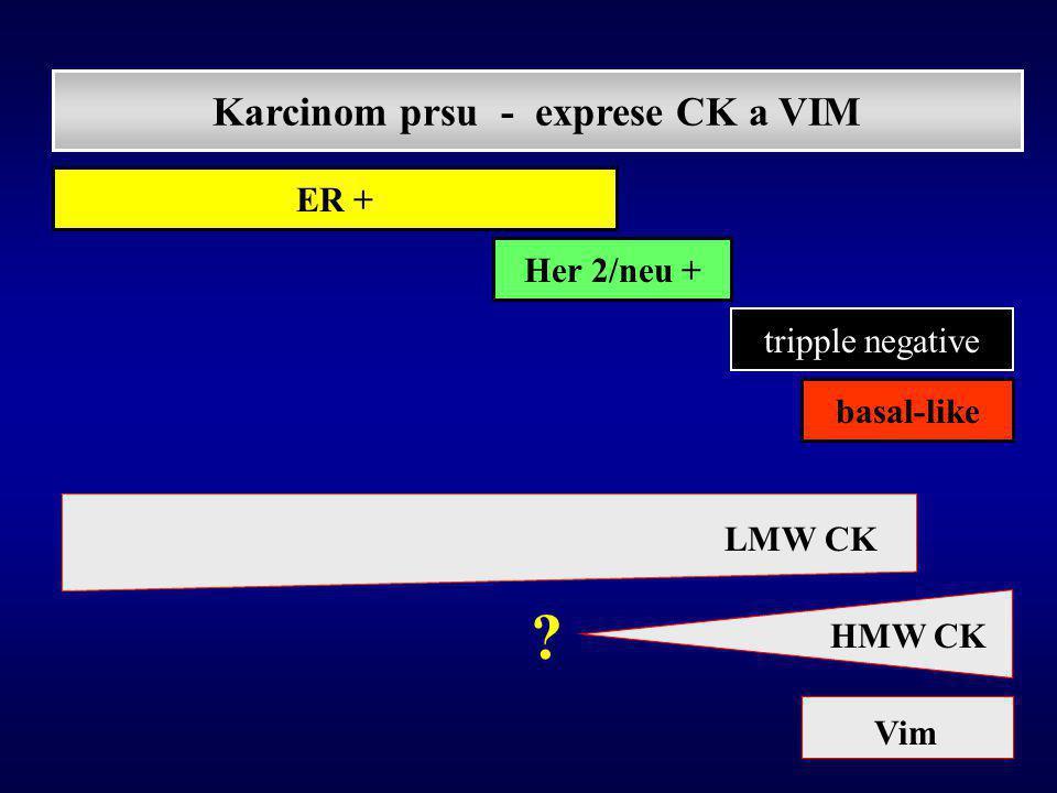 Rakha EA et al.: Breast carcinoma with basal differentiation: proposal for pathology definition based on basal cytokeratin expression ( Histopathology 2007 )  BF určuje HMW CK (není omezen pouze na 3N tumory či expresi vim, p63, EGFR, myoepiteliálních markerů,..)  prognostická nepříznivost ER- u lézí s BF se stírá při zohlednění gradu - existence ER+ karcinomů s BF .