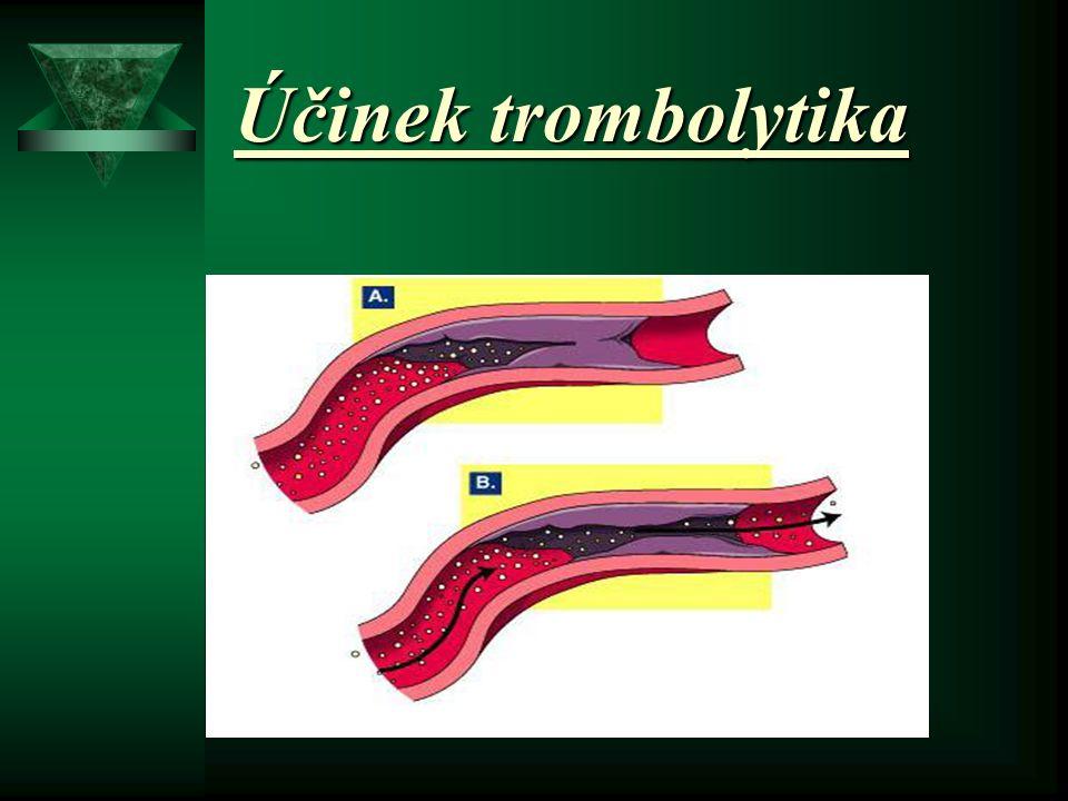 ACTILYSE = trombolýza rekombinantní aktivátor tkáňového plazminogenu (rTPA)  standardní léčebný postup  rozpuštění fibrinové sraženiny  zprůchodněn