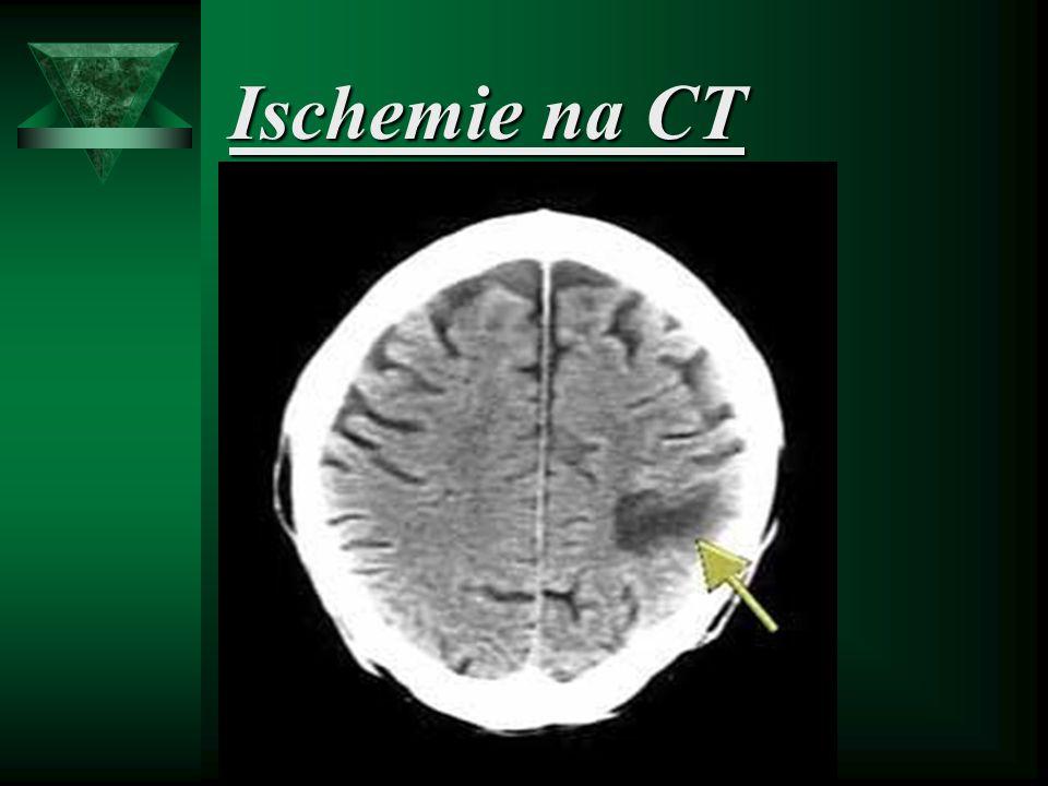Ischemie na CT