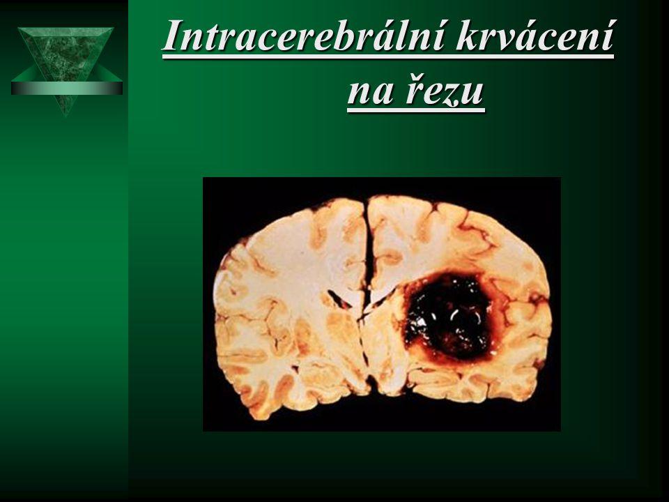Intracerebrální krvácení na řezu