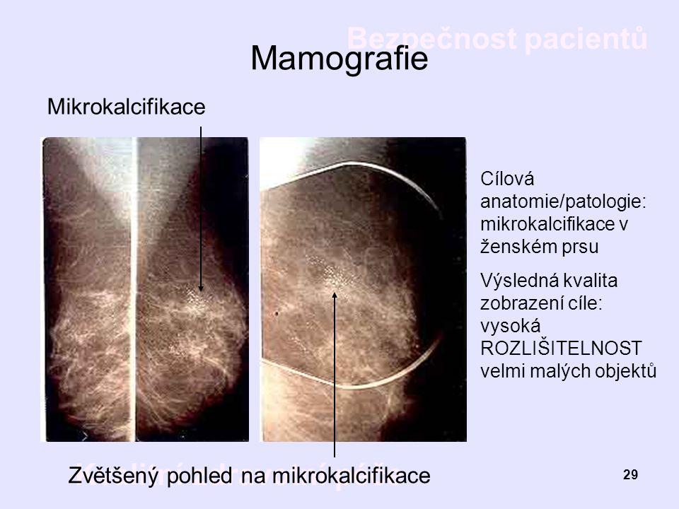 Bezpečnost pacientů Kvalitní zdravotní péče 29 Mamografie Mikrokalcifikace Zvětšený pohled na mikrokalcifikace Cílová anatomie/patologie: mikrokalcifi