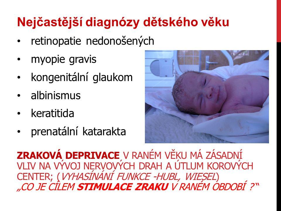 Nejčastější diagnózy dětského věku retinopatie nedonošených myopie gravis kongenitální glaukom albinismus keratitida prenatální katarakta ZRAKOVÁ DEPR
