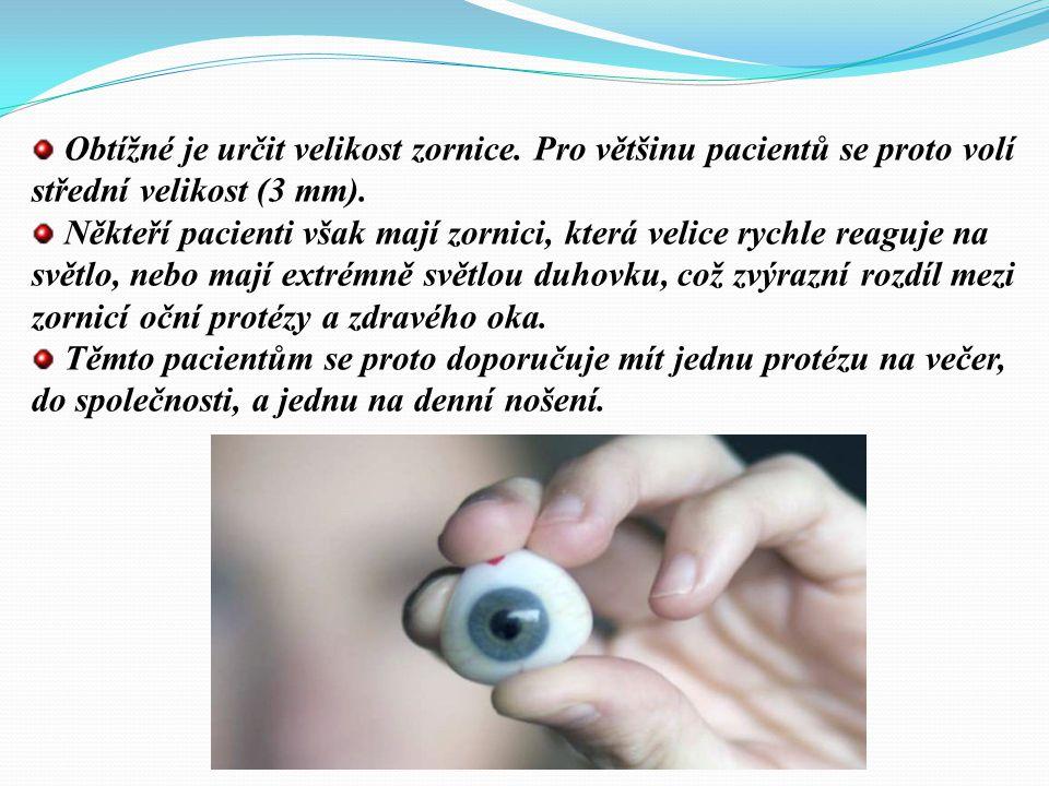 AKRYLÁTOVÉ KOSMETICKÉ OČNÍ PROTÉZY Doporučují se hlavně u dětí. Vyrábí se na zakázku nebo sériově. Asi 6 až 8 týdnů po rekonstrukci orbity (enukleaci,