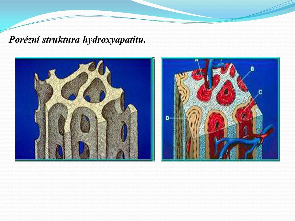 Hydroxyapatit -vytvořen společností US Food andDrug Administration (FDA) v roce 1989. Běžně dostupný HA implantát má velikost pórů 500 ^m (HA 500) → k