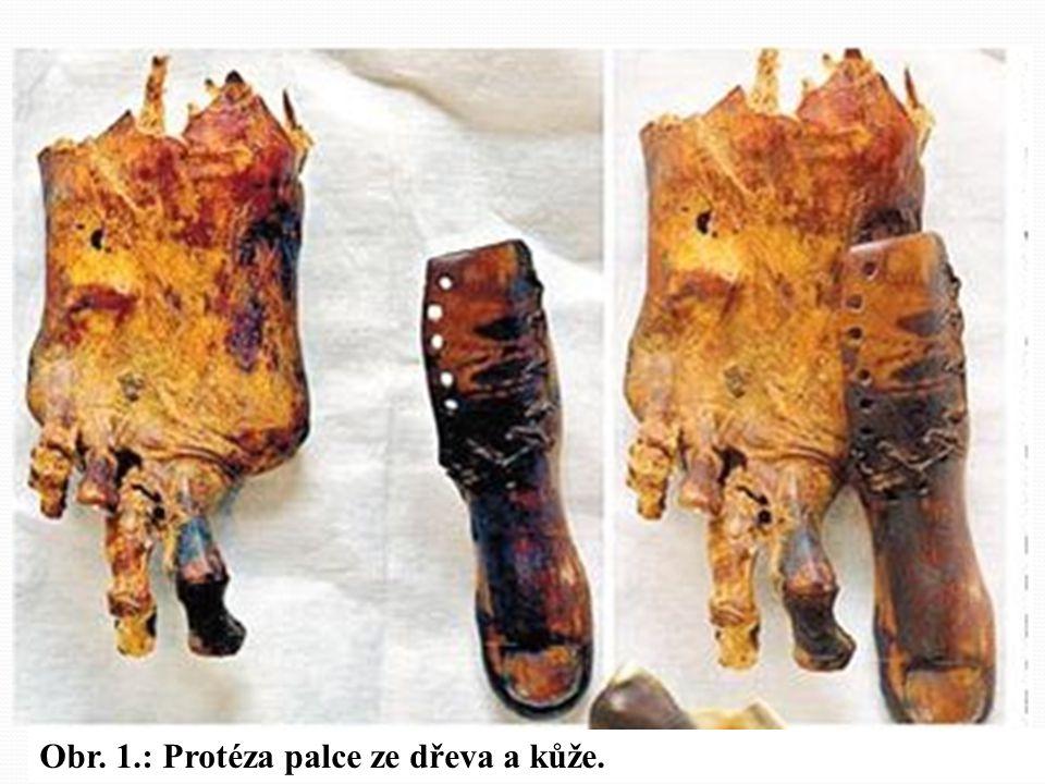 První doložené náhrady částí dolních končetin z období asi 950 - 710 let př.n.l. z Théb. Byly vyrobeny většinou kombinací několika materiálů (dřeva, k
