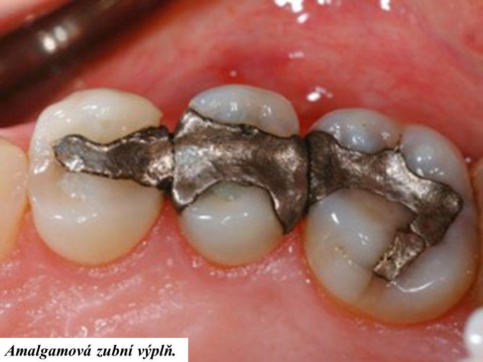 V roce 1603 Němec Tobias Dorn Kreilius vyráběl amalgamové výplně tak, že rozpustil sulfid mědi v silné kyselině, přidal rtuť, přivedl k varu a pak tuto směs nalil pacientovi přímo do zubu.