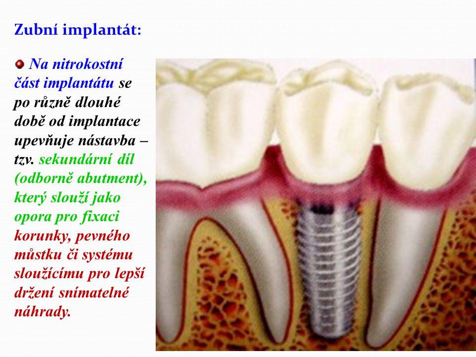 """Co je to zubní implantát: ZUBNÍ IMPLANTÁTY V zubním lékařství se pod pojmem implantát rozumí umělá náhražka ztraceného vlastního zubu - """"umělý kořen zavedený chirurgicky do čelistní kosti v místě kde došlo ke ztrátě vlastního zubu či zubů."""