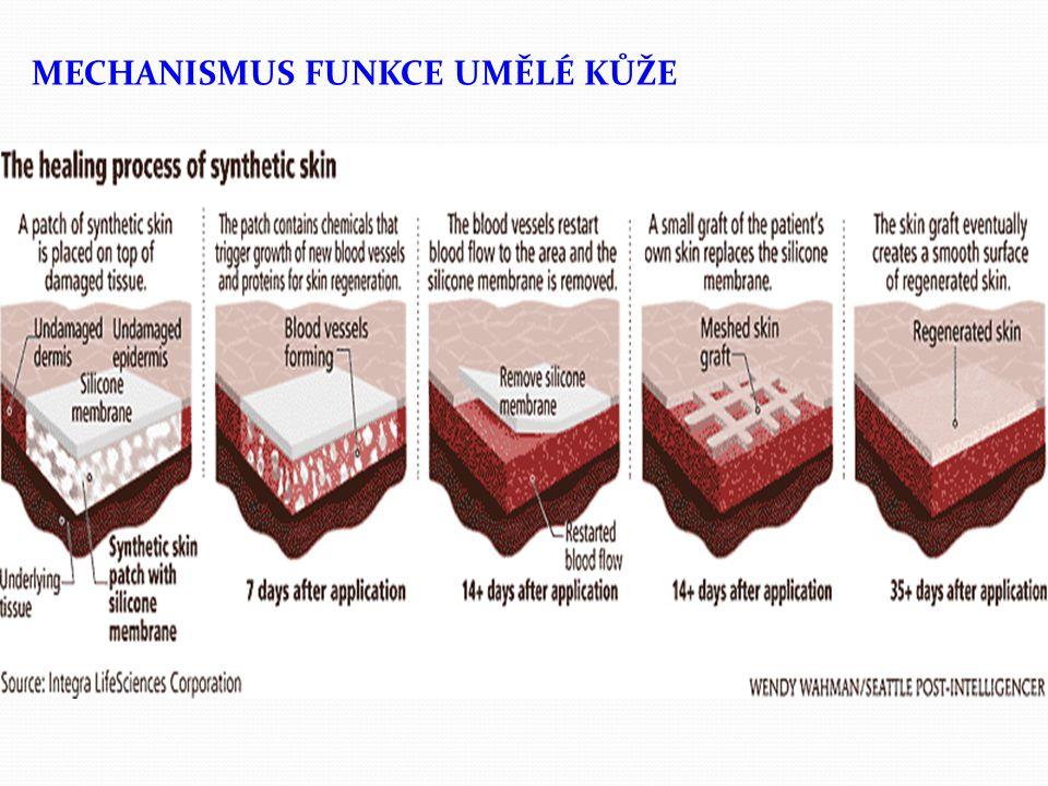 """KOŽNÍ KRYTY A UMĚLÁ KŮŽE Jeho tým našel způsob, jak vytvořit ultramalé """"nanodráty ze směsi silikonu teflonu a germania a z nich pak přilnavou blánu, která vytváží mikroskopickou síť, (kterou mohou prorůstat cévy a nová kožní tkáň)."""