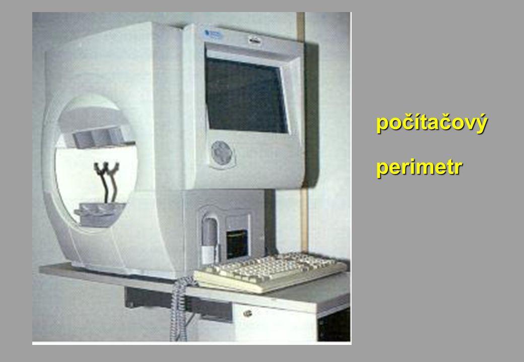 počítačovýperimetr