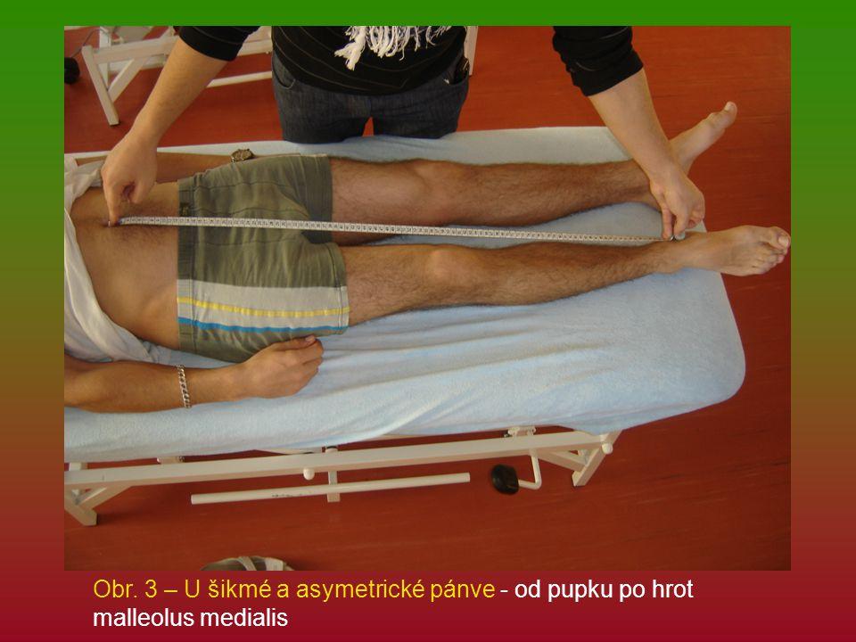 Obr. 3 – U šikmé a asymetrické pánve - od pupku po hrot malleolus medialis