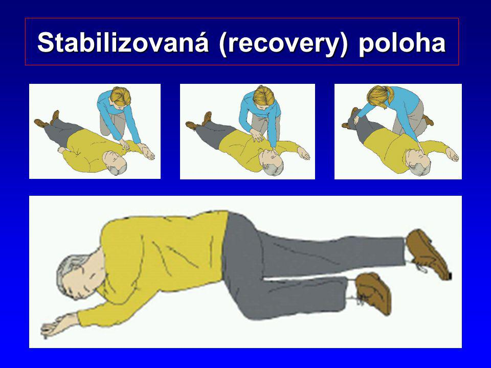 12 Stabilizovaná (recovery) poloha