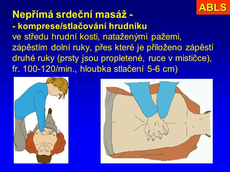 5 Nepřímá srdeční masáž - - komprese/stlačování hrudníku ve středu hrudní kosti, nataženými pažemi, Nepřímá srdeční masáž - - komprese/stlačování hrud