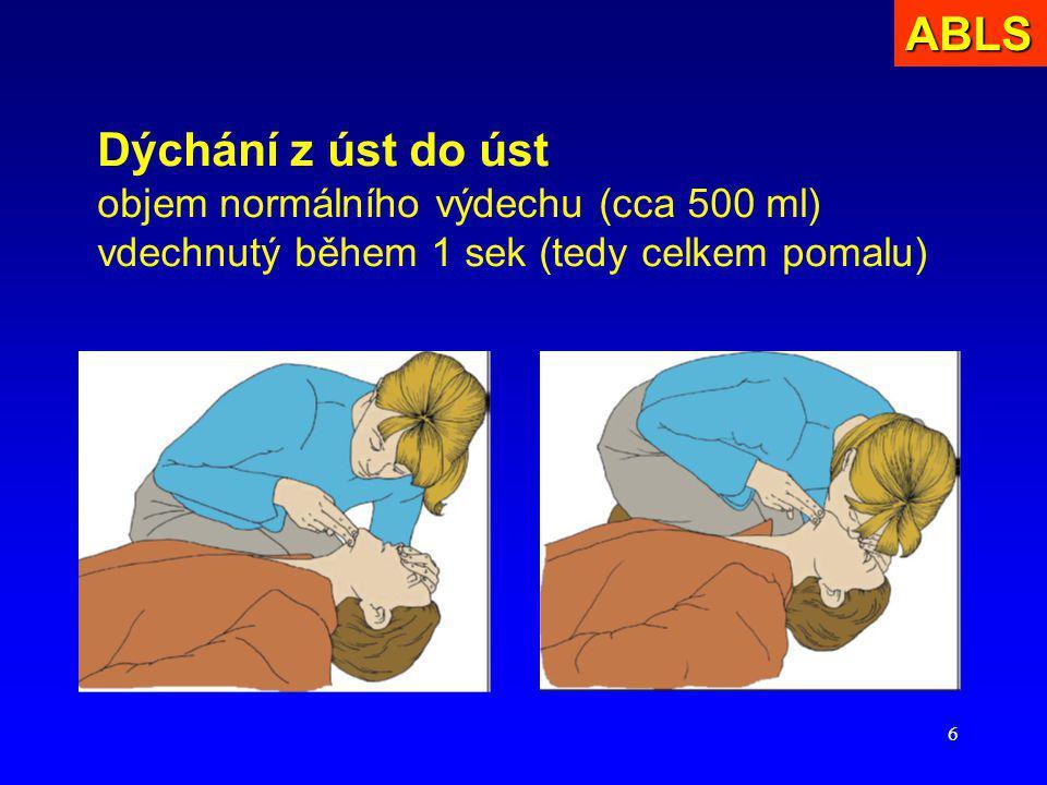 6 Dýchání z úst do úst objem normálního výdechu (cca 500 ml) vdechnutý během 1 sek (tedy celkem pomalu)ABLS
