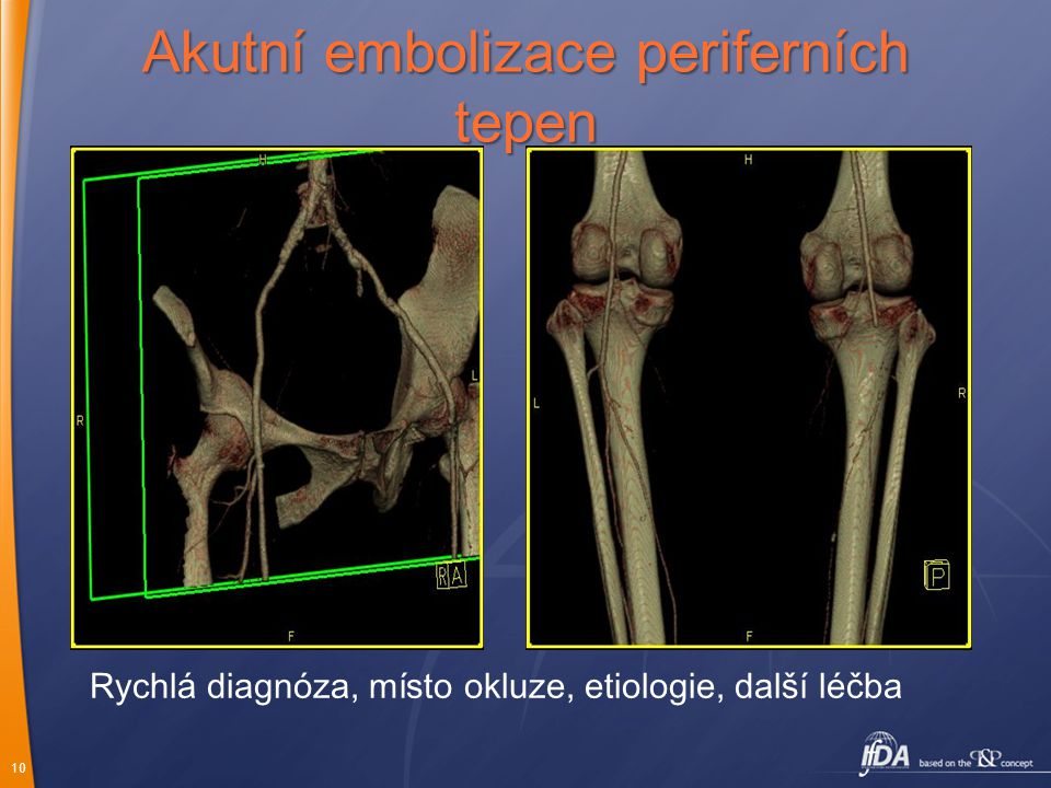 10 Akutní embolizace periferních tepen Rychlá diagnóza, místo okluze, etiologie, další léčba