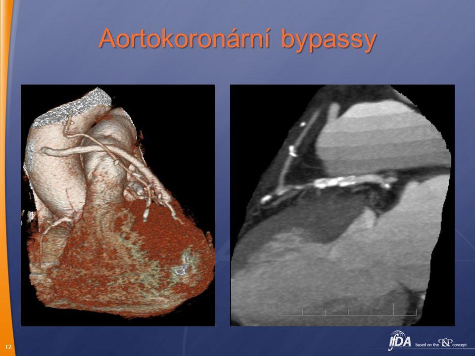 12 Aortokoronární bypassy