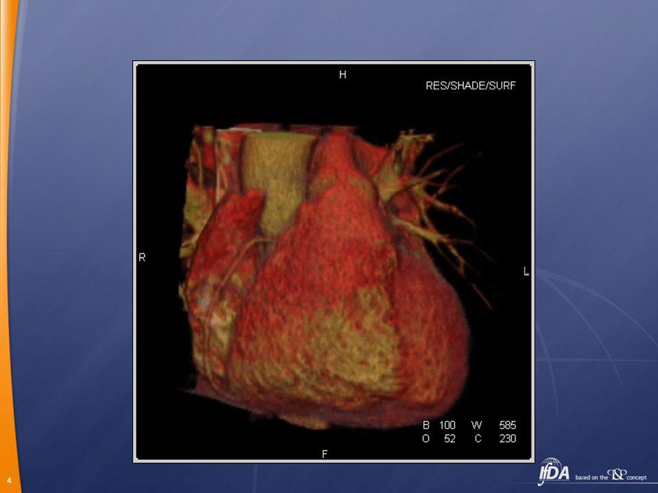 5 Oblasti vhodné k CT angiografii ( CTA) Plicní arterie Periferní tepny Koronární arterie Aorta a její větve Karotické a vertebrální tepny Periferní žíly, portální žíly