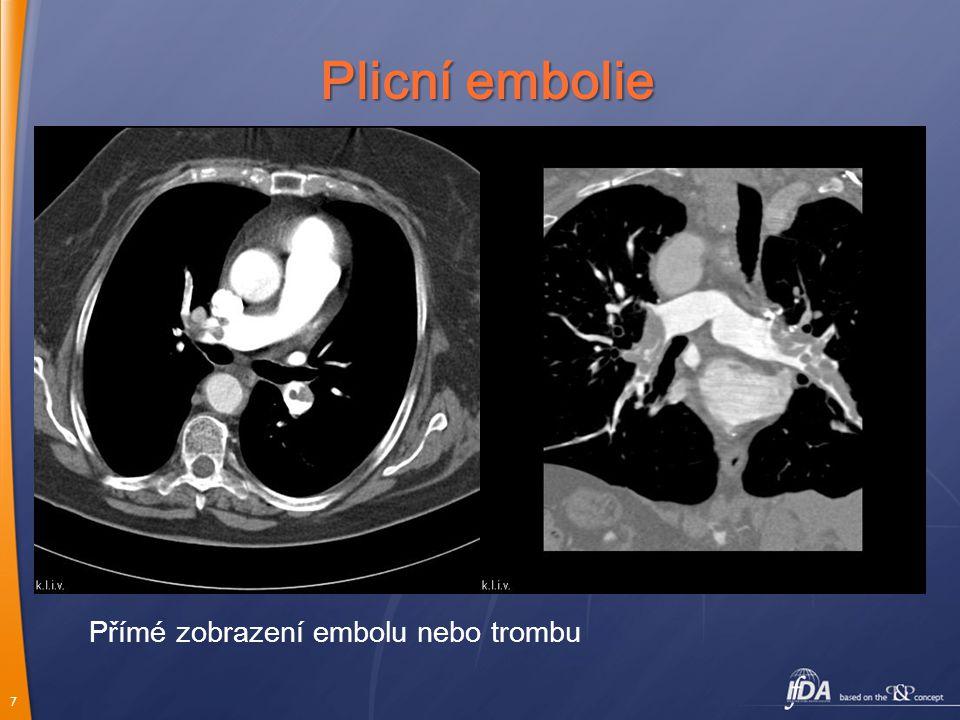7 Plicní embolie Přímé zobrazení embolu nebo trombu