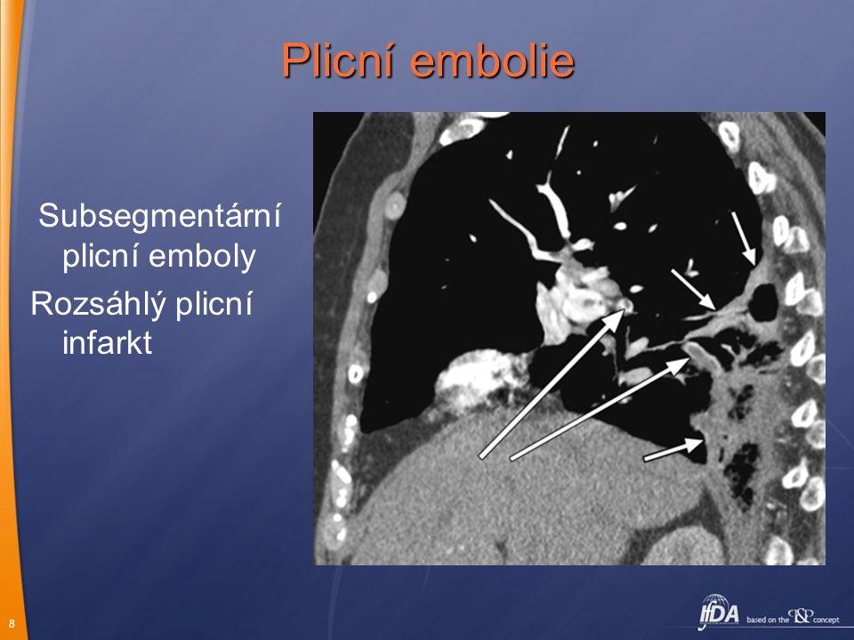 8 Subsegmentární plicní emboly Rozsáhlý plicní infarkt Plicní embolie