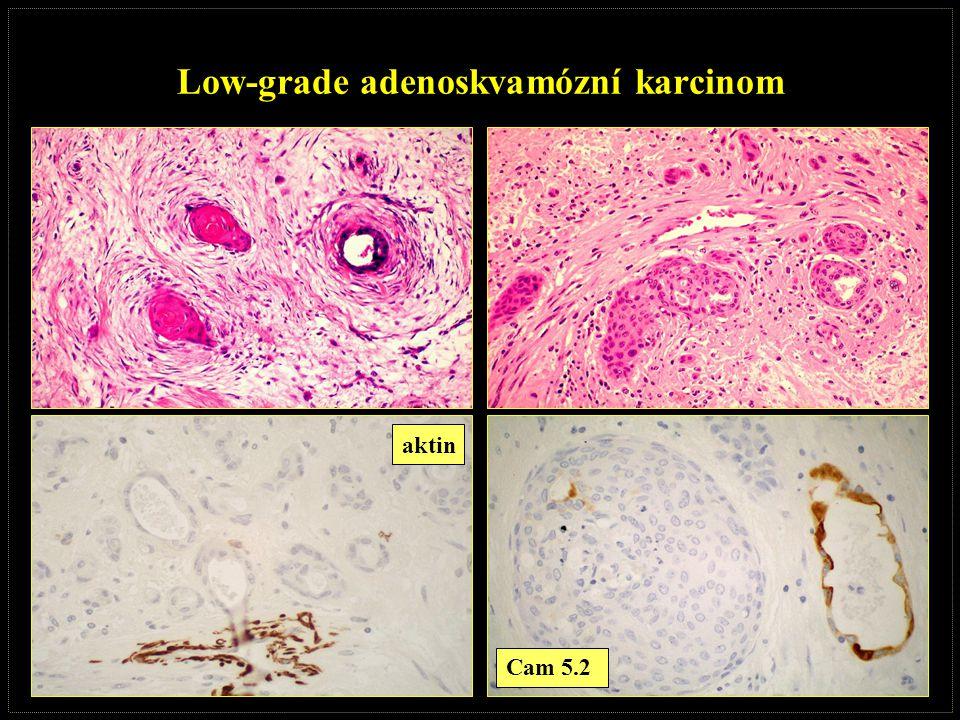 Low-grade adenoskvamózní karcinom aktin Cam 5.2