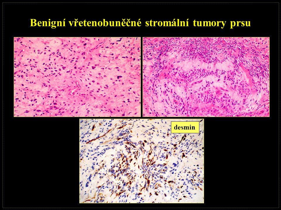 Benigní vřetenobuněčné stromální tumory prsu desmin