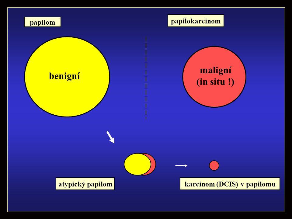 benigní maligní (in situ !) atypický papilom papilom karcinom (DCIS) v papilomu papilokarcinom