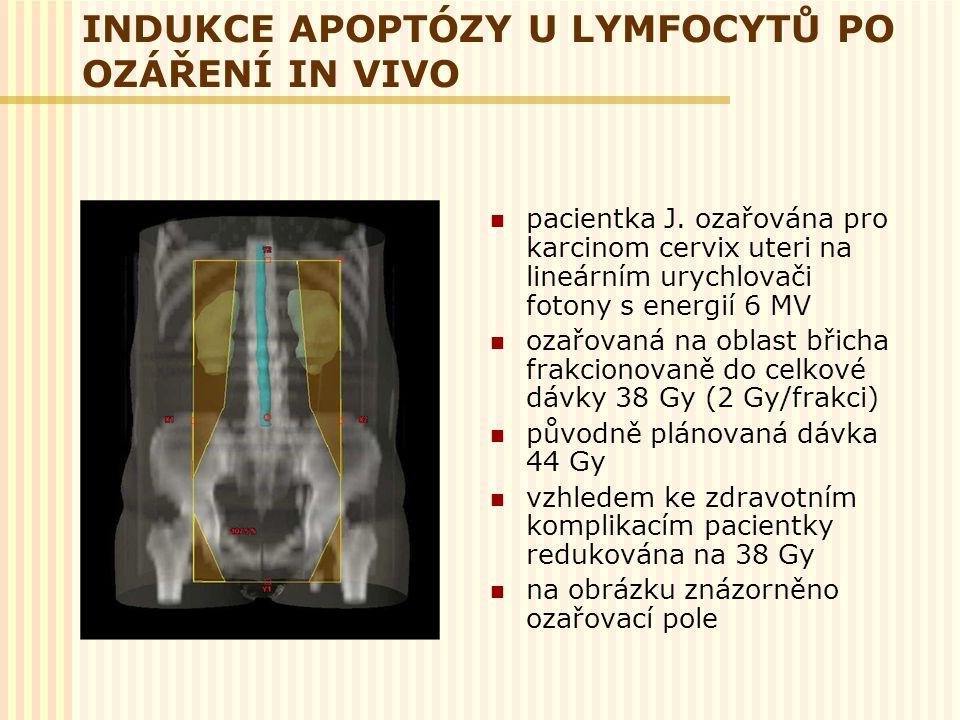 INDUKCE APOPTÓZY U LYMFOCYTŮ PO OZÁŘENÍ IN VIVO pacientka J. ozařována pro karcinom cervix uteri na lineárním urychlovači fotony s energií 6 MV ozařov