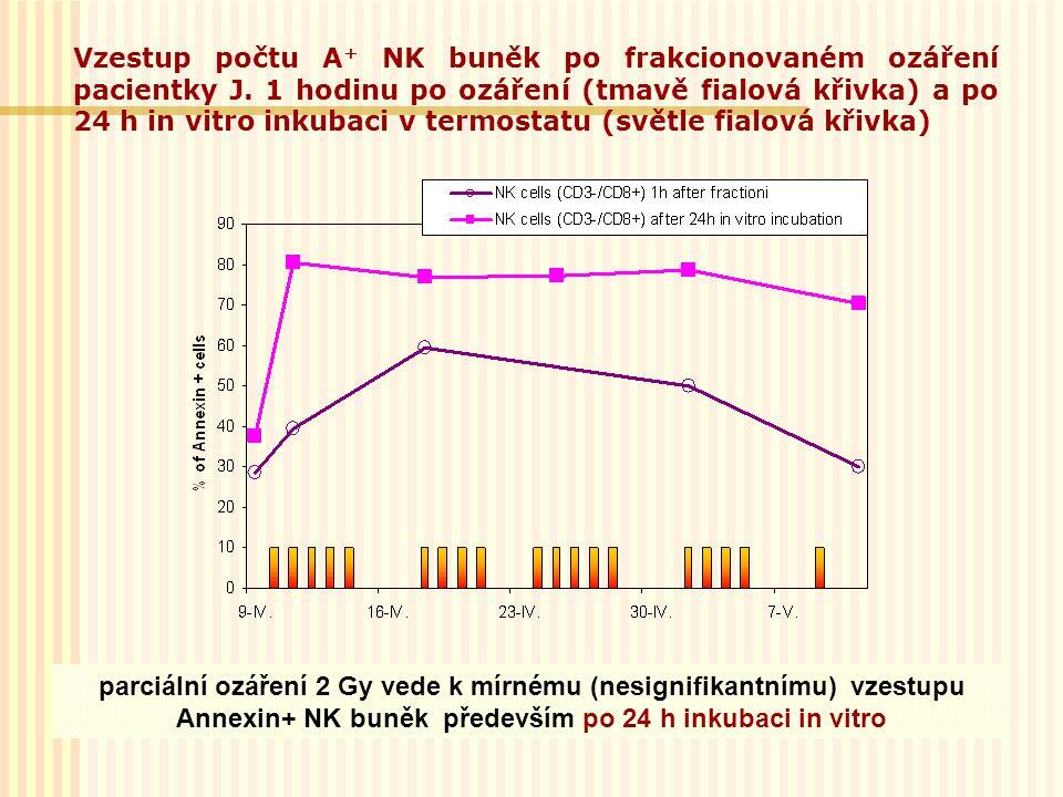 parciální ozáření 2 Gy vede k mírnému (nesignifikantnímu) vzestupu Annexin+ NK buněk především po 24 h inkubaci in vitro Vzestup počtu A + NK buněk po