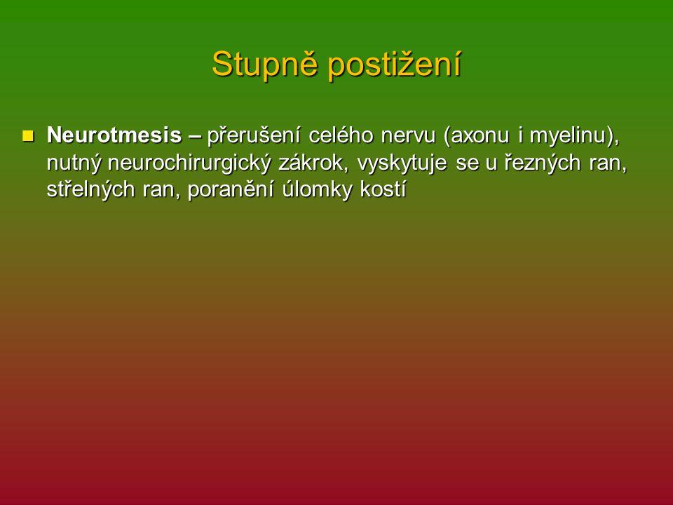Stupně postižení Neurotmesis – přerušení celého nervu (axonu i myelinu), nutný neurochirurgický zákrok, vyskytuje se u řezných ran, střelných ran, por