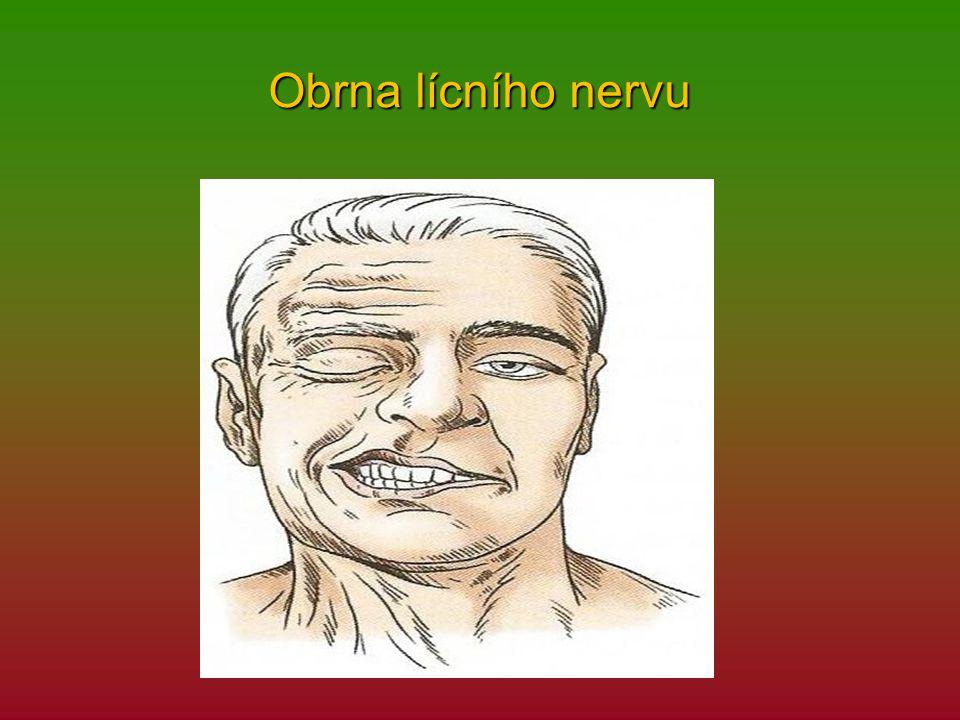 Obrna lícního nervu