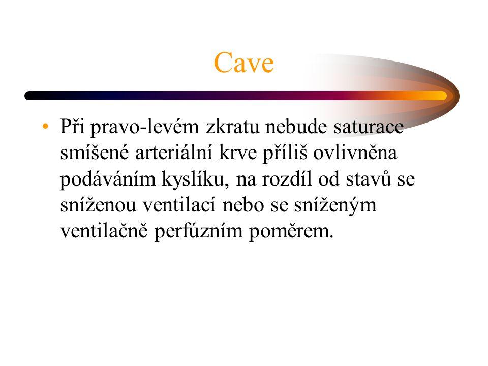 Cave Při pravo-levém zkratu nebude saturace smíšené arteriální krve příliš ovlivněna podáváním kyslíku, na rozdíl od stavů se sníženou ventilací nebo se sníženým ventilačně perfúzním poměrem.