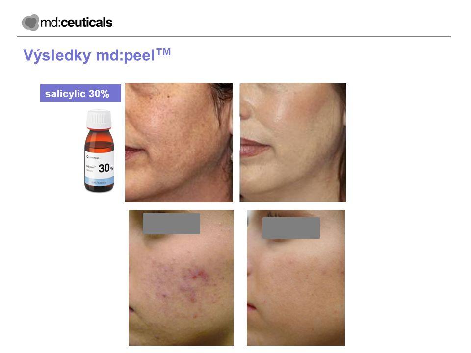Výsledky md:peel TM salicylic 30%