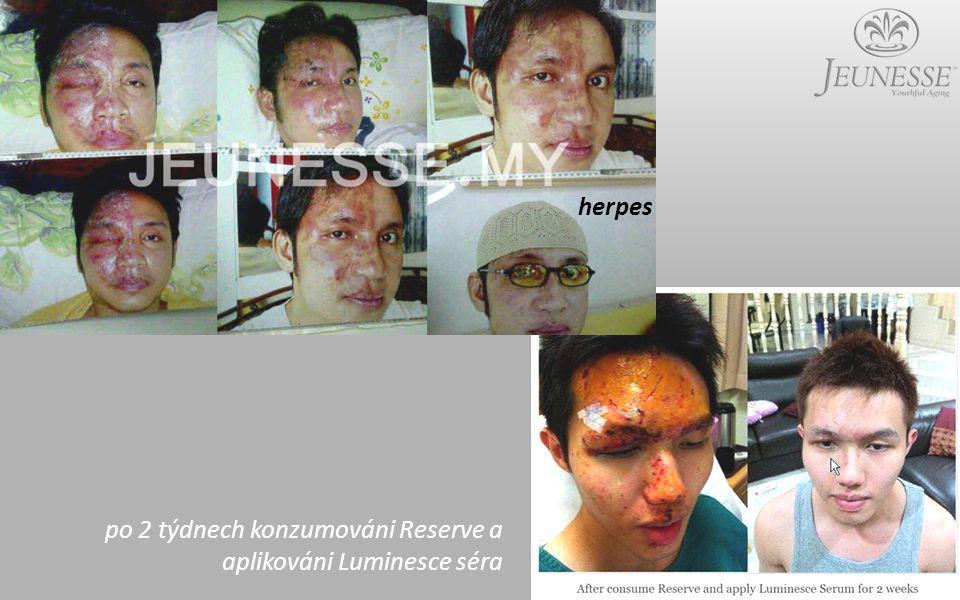 po 2 týdnech konzumováni Reserve a aplikováni Luminesce séra herpes