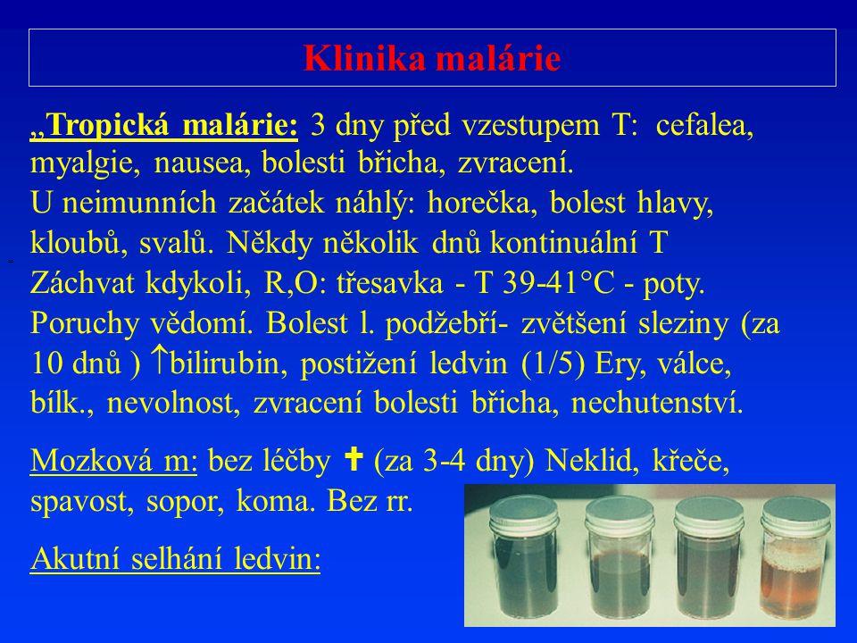 """Klinika malárie """" """"Tropická malárie: 3 dny před vzestupem T: cefalea, myalgie, nausea, bolesti břicha, zvracení. U neimunních začátek náhlý: horečka,"""