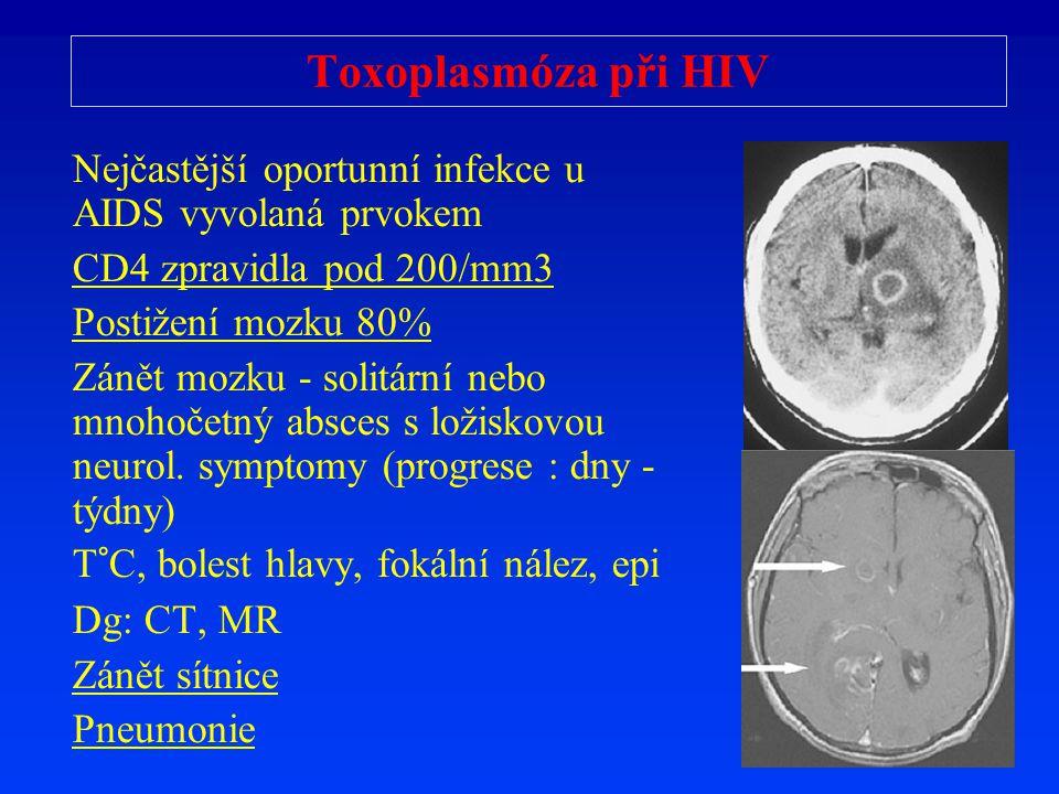 Toxoplasmóza p ř i HIV Nej č ast ě jší oportunní infekce u AIDS vyvolaná prvokem CD4 zpravidla pod 200/mm3 Posti ž ení mozku 80% Zán ě t mozku - solit