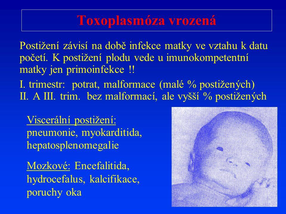 Toxoplasmóza vrozená Posti ž ení závisí na dob ě infekce matky ve vztahu k datu po č etí. K posti ž ení plodu vede u imunokompetentní matky jen primoi