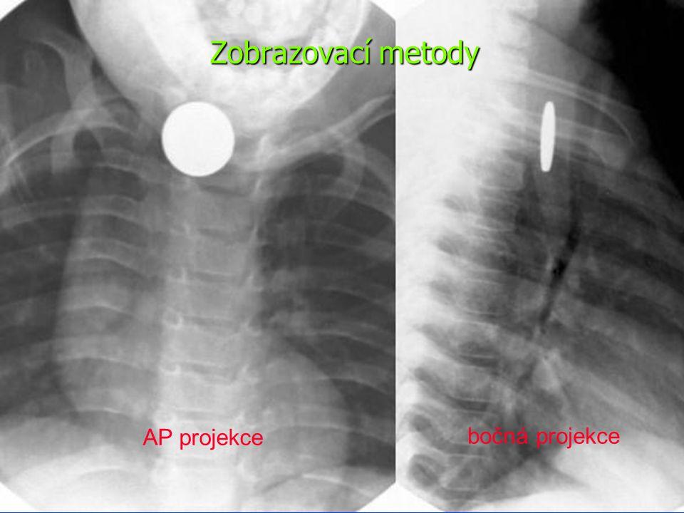 Endoskopie – indikace urgentního výkonu Ostré předměty v jícnu s rizikem perforace Baterie Symptomatologie kompletní obstrukce Žádné cizí těleso v jícnu déle než 24 hodin