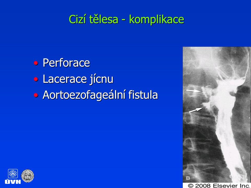 Cizí tělesa – žaludek Tupá, atraumatická, < 50 mm v největším průměru cizí tělesa z inertního materiálu v žaludku nejsou indikací k endoskopické extrakci Pacienty možno sledovat ambulantně, u kontrastních předmětů za 48 hod RTG kontrola U nepostupujících těles dle charakteru zvážit endoskopické nebo chirurgické řešení
